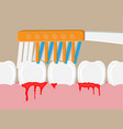 periodontal disease bleeding gums vector image vector image