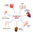 diabetes affects complications of diabetes vector image vector image
