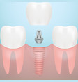 human teeth and dental implant isolated on a vector image vector image