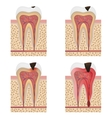 Development of dental caries vector image