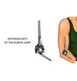 arthroplasty of the elbow joint vector image vector image