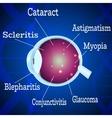 Human Eye diseases 2 vector image