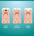 treatment of caries dental filling dental caries vector image