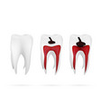 stages of caries development isolated on white vector image