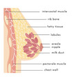 medical infographic cross section female breast vector image vector image