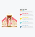 tooth structure infographic with some point title vector image