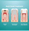pulpitis root canal therapy infected pulp is vector image vector image