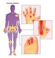 psoriatic arthritis vector image vector image