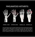 arthritis hand leg rheumatoid medicine education v vector image