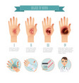 degree of skin burns burns treatment vector image