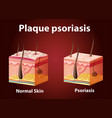 diagram showing plaque psoriasis vector image