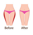 fat and slim girls hips before and after vector image vector image