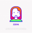 edema thin line icon woman with swollen cheeks vector image