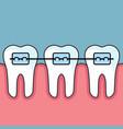 teeth with dental braces - dental arrange vector image vector image