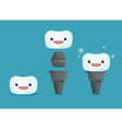 Tooth implant 3 step of dental vector image vector image