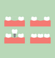 step of caries to dental implant with crown vector image vector image
