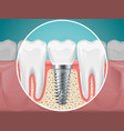 stomatology dental implants and vector image vector image