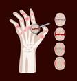 rheumatoid disease arthritis medicine education ve