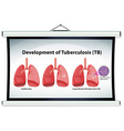 Chart showing development of Tuberculosis vector image vector image