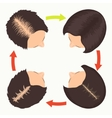 Female pattern hair loss stages vector image vector image