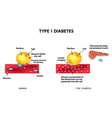 The absorption of glucose by the cell Type 1 vector image