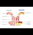 medical infographic sinus and human nasal vector image vector image
