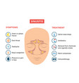 respiratory sinusitis symptoms and treatment vector image vector image