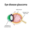 Glaucomatous eye Violations causing glaucoma vector image vector image