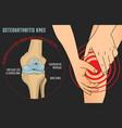 osteoarthritis knee poster vector image vector image