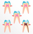 Stage of caries vector image