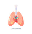 lung cancer concept in flat style vector image