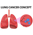 Diagram of lung cancer concept vector image vector image