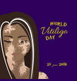 world vitiligo day poster vector image