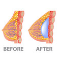 breast implant before and after isolated on white vector image vector image