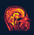 magnetic resonance imaging brain mri scan vector image