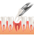 realistic dental surgery in 3d vector image