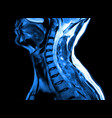 magnetic resonance imaging cervical spine vector image