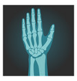 x-ray shot wrist human body bones hand vector image