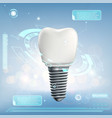 human dental implant vector image