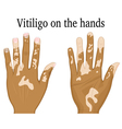Vitiligo on the hands vector image