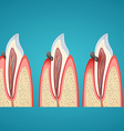 Stages progress caries on human canine vector image vector image