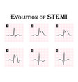 ecg of evolution of stemi vector image vector image