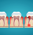 Stages progress caries on human teeth and disease vector image vector image