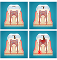 Stages progress dental caries and toothache vector image vector image