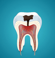 Teeth caries in cutaway vector image vector image