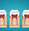 Three human tooth in cutaway with gum disease vector image vector image