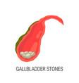 inflamed gallbladder cholelithiasis concept vector image vector image