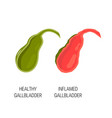 inflamed and healthy gallbladder concept vector image vector image
