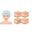 lady facial and skin botox vector image