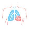 icon of lung disease pneumonia vector image